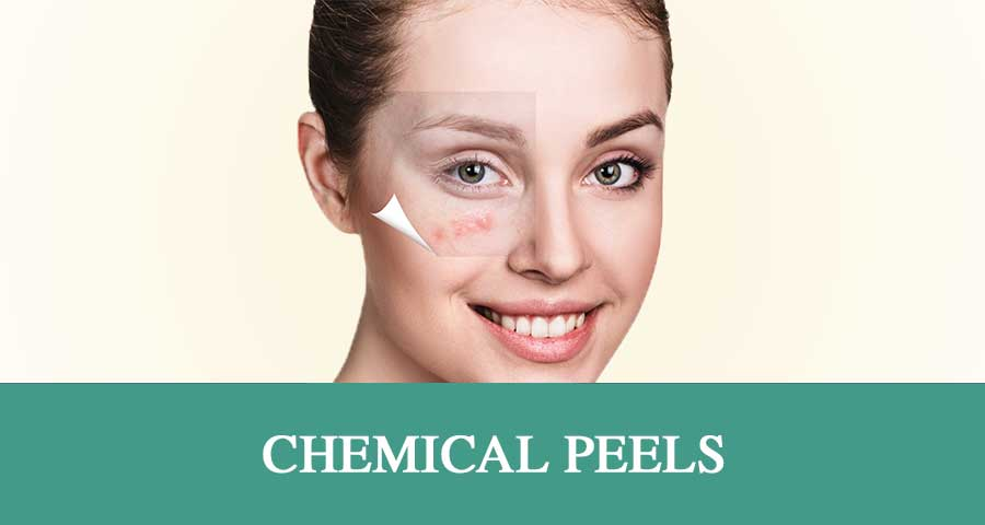 Chemical-Peels