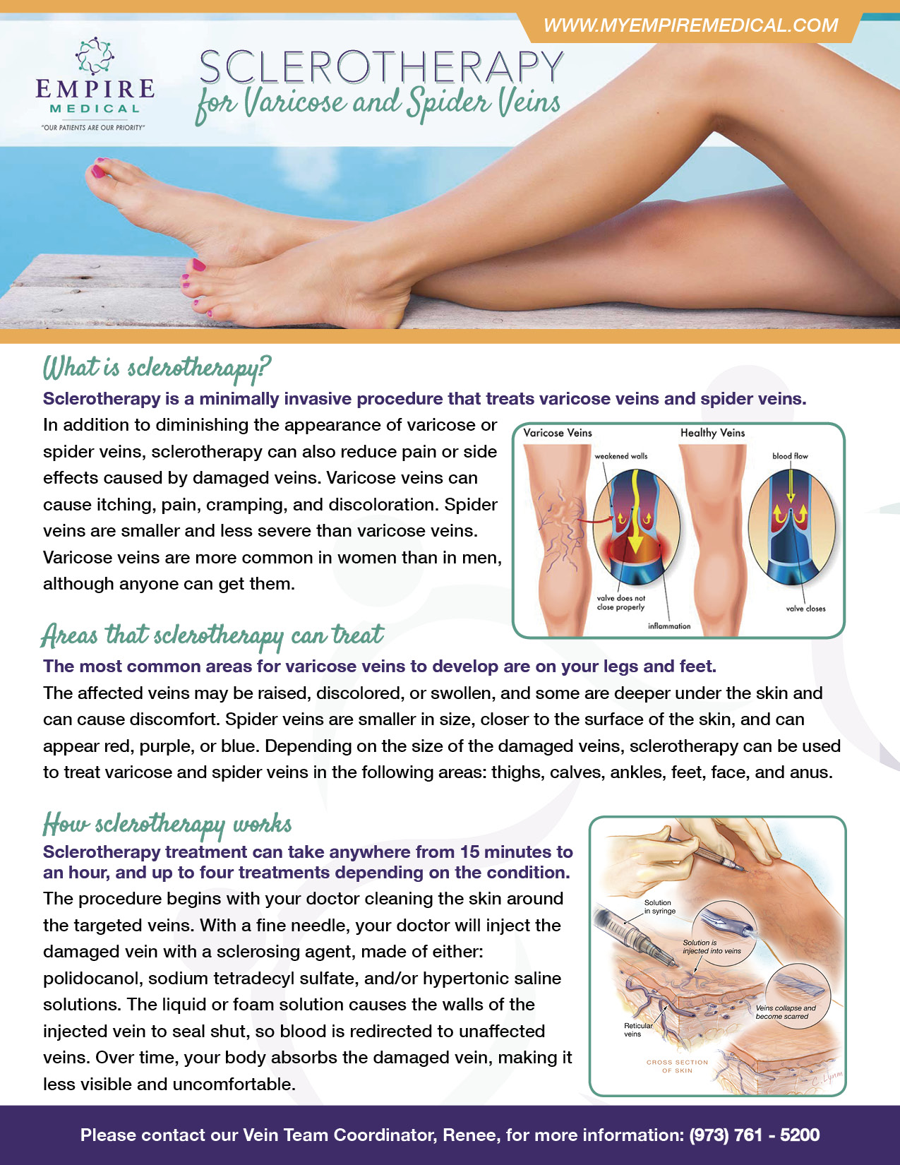 Sclerotherapy Patient Education
