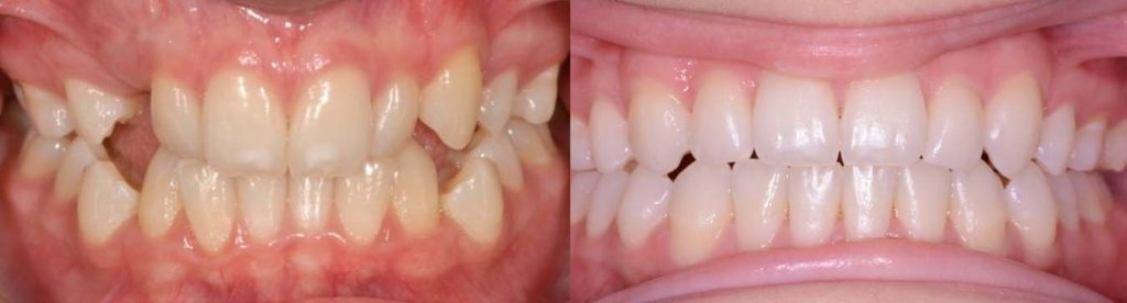 Straight teeth after orthodontic braces by Mark Cordato, Bathurst - Blayney - Oberon - Mudgee