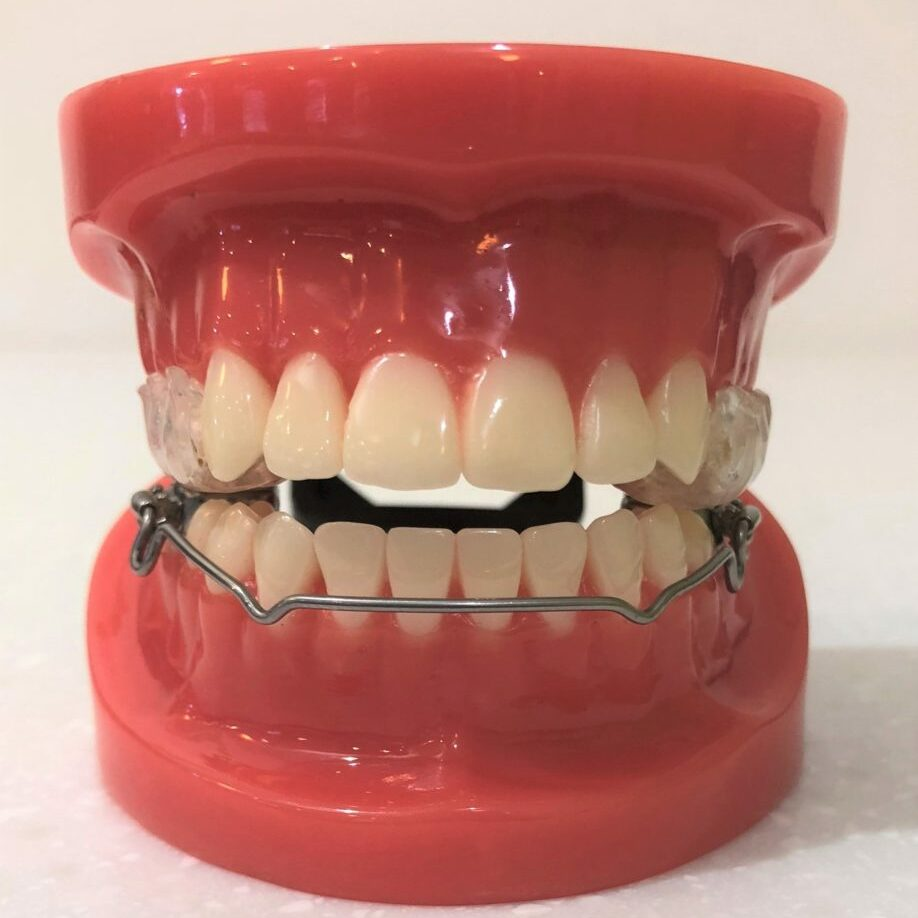 Lip bumper and upper expansion with plastic over the upper premolar and molar biting surfaces. Both gain space which broadens both arches and reduces the number of tooth extractions required to align the teeth.