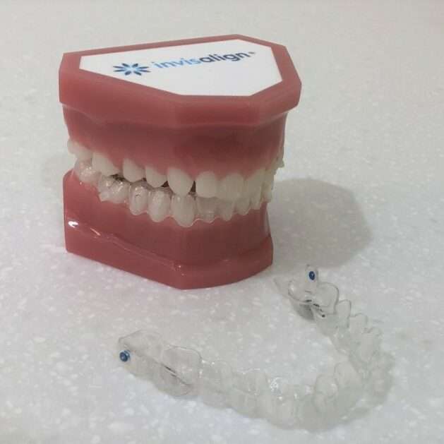 Model showing Invisalign clear aligners at Mark Cordato, Orthodontist