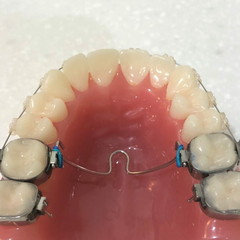 Transpalatal arch and braces. controls the moalrs and premolars much more precisely, holds the space gained from expansion and can reduce the number of tooth extractions. Many dentists feel this improves the bite and reduces damaging clenching forces. Mark Cordato, specialist orthodontist, Bathurst, Blayney, Oberon, Mudgee.