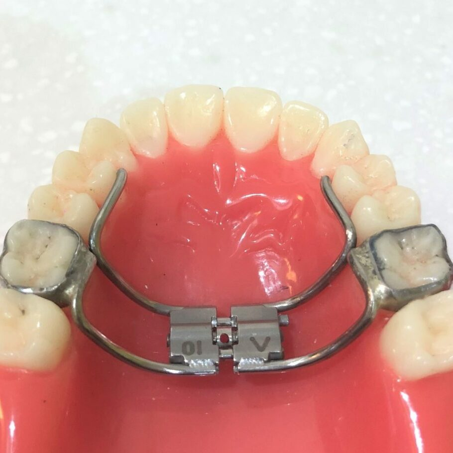 Upper expansion plate. Widens the upper, makes more space and broadens the smile. Mark Cordato, specialist orthodontist, Bathurst, Blayney, Oberon, Mudgee.
