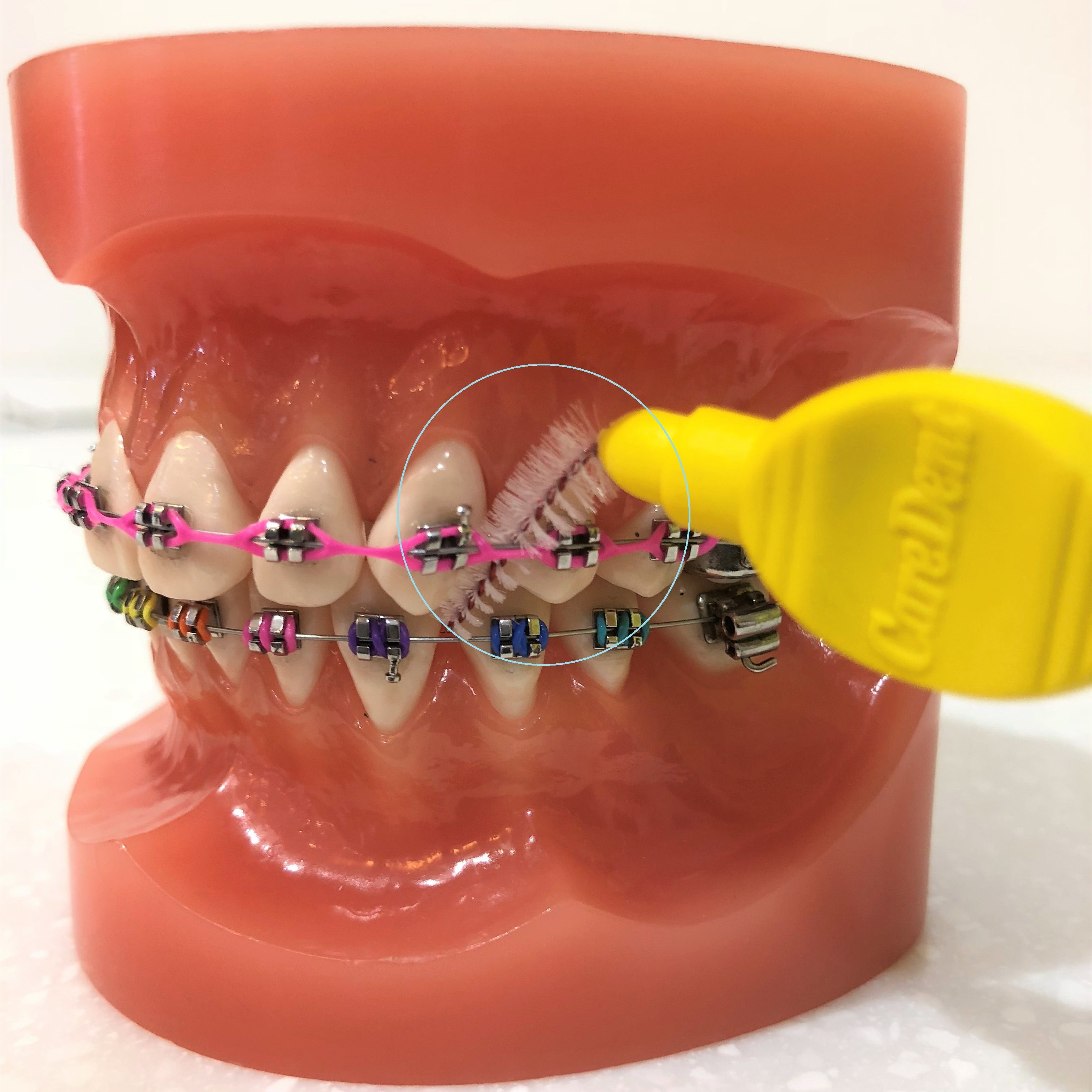 Small brushes to clean between teeth. Mark Cordato, specialist orthodontist Bathurst, Blayney, Oberon, Hill End, Mudgee, Sofala, Ilford, Portland, Rylstone, Kandos, Tarana.