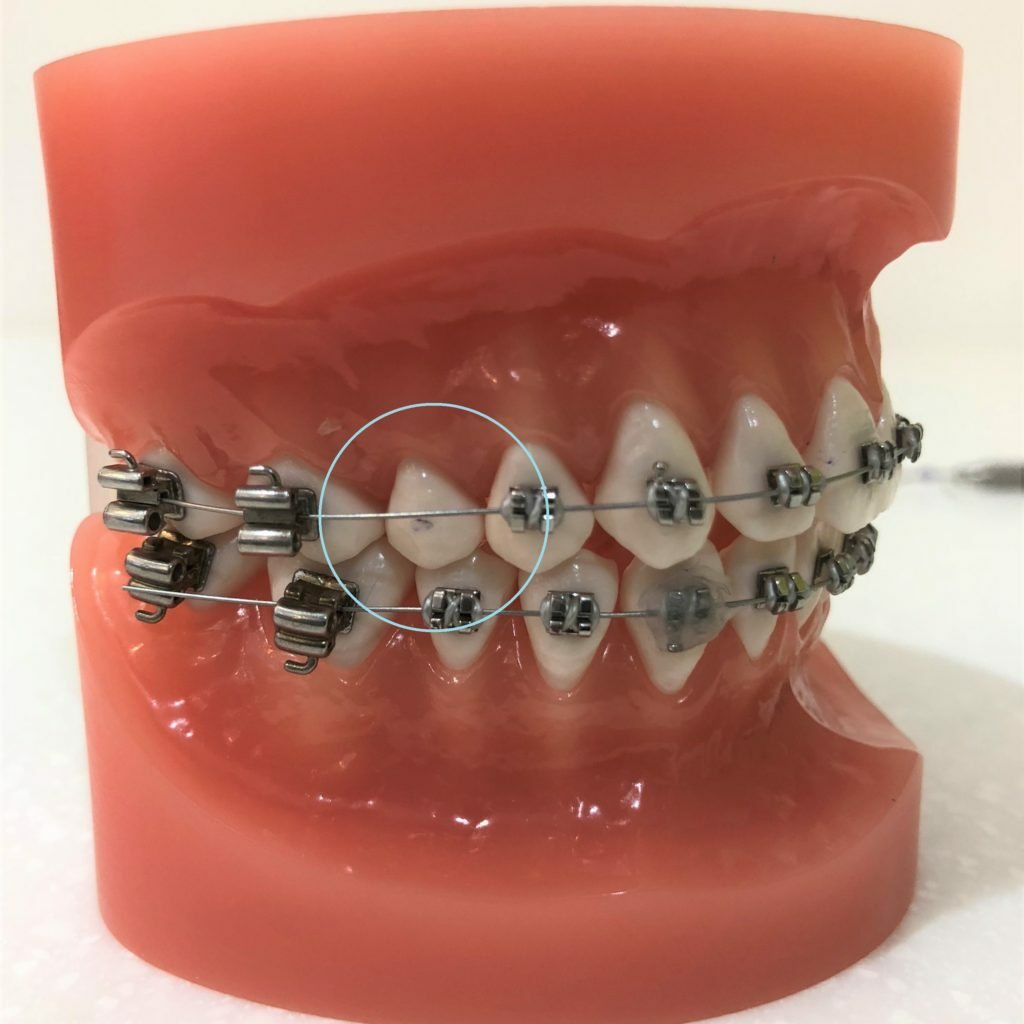 Lost orthodontic bracket