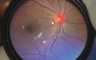 Tamiz Ocular del Recién Nacido. En el primer mes de vida se debe detectar una Catarata Congénita.