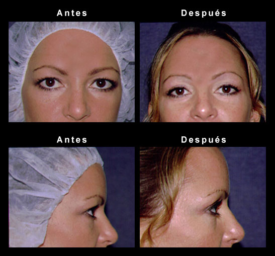 Upper Eyelid Surgery - Chicago-IL