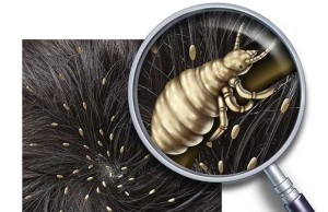 Lice Problem