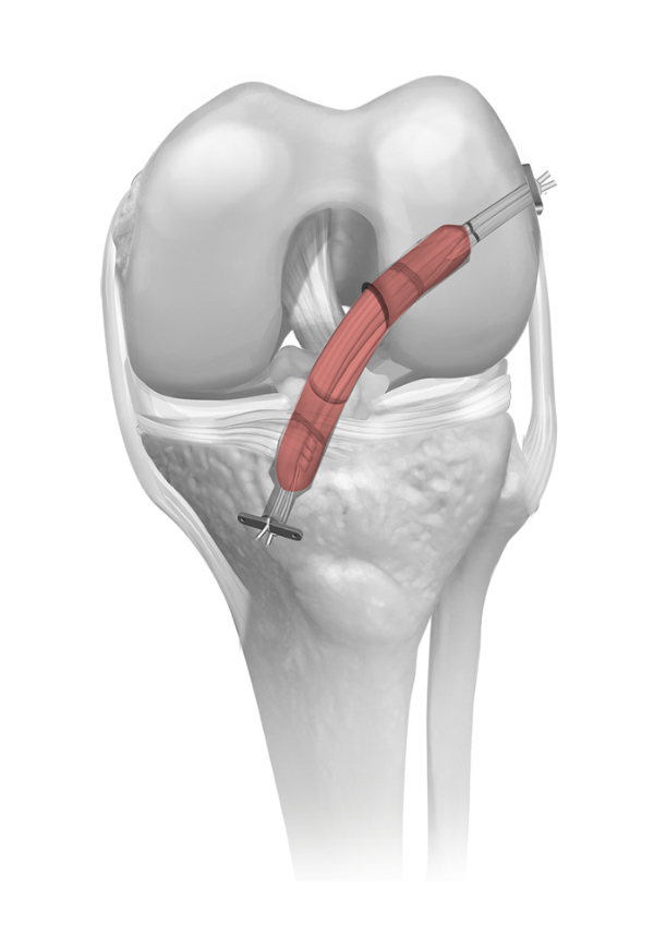 ACLR with NBT, cortical fixation in femur, and cortical fixation in tibia
