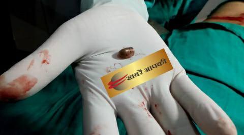 भोजपुर में विवाद के दौरान गरजी बंदूक-एक को लगी गोली