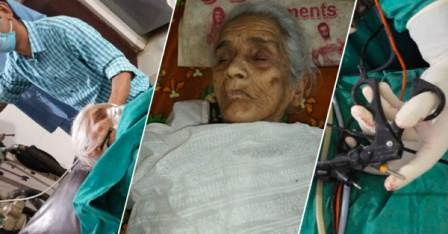 Stone Operation-100-year-old woman