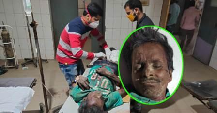Truck driver injured-jamalpur