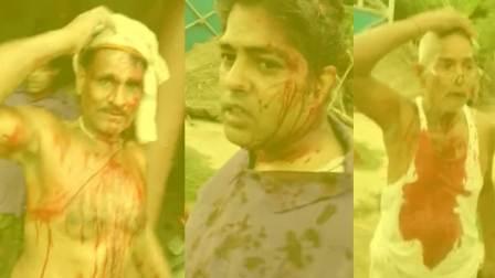 Bahoranpur - injured