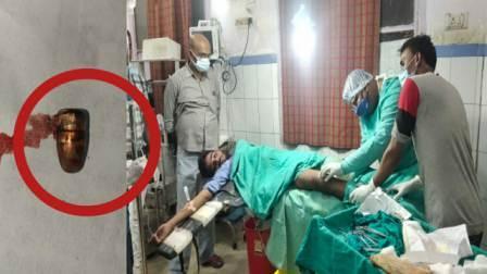 Dr. Mahavir Prasad Gupta fired a bullet from the young man's leg