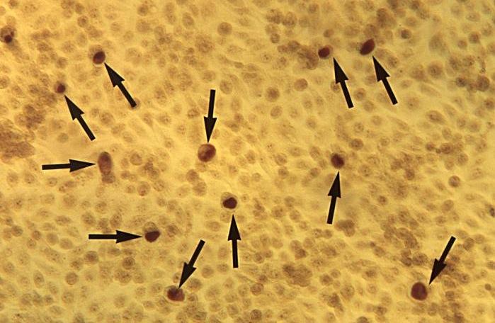 Chlamydia_Geimsa_Stain_CDC.0
