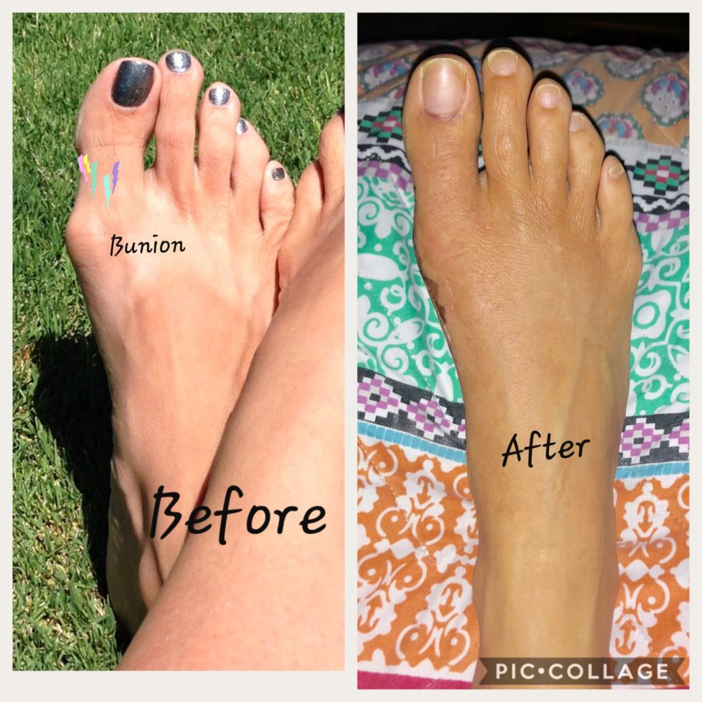 Bunion surgery results before and after surgery