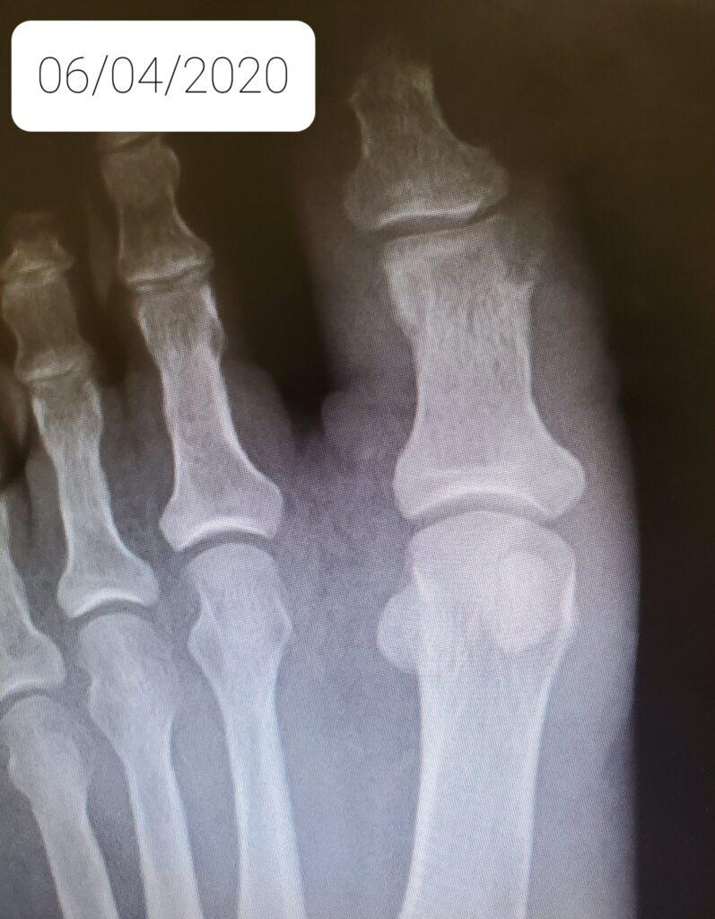 infected bone