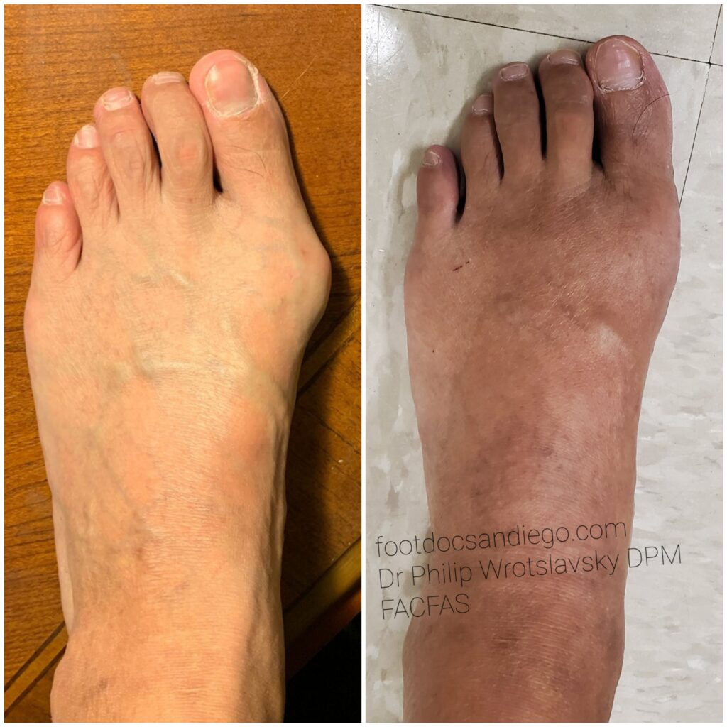 Before and after bunionectomy