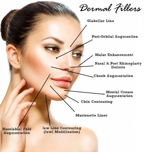 Dermal-Fillers1