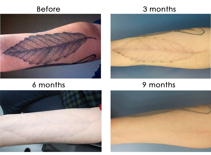 laser-tattoo-removal-image-nyc-new