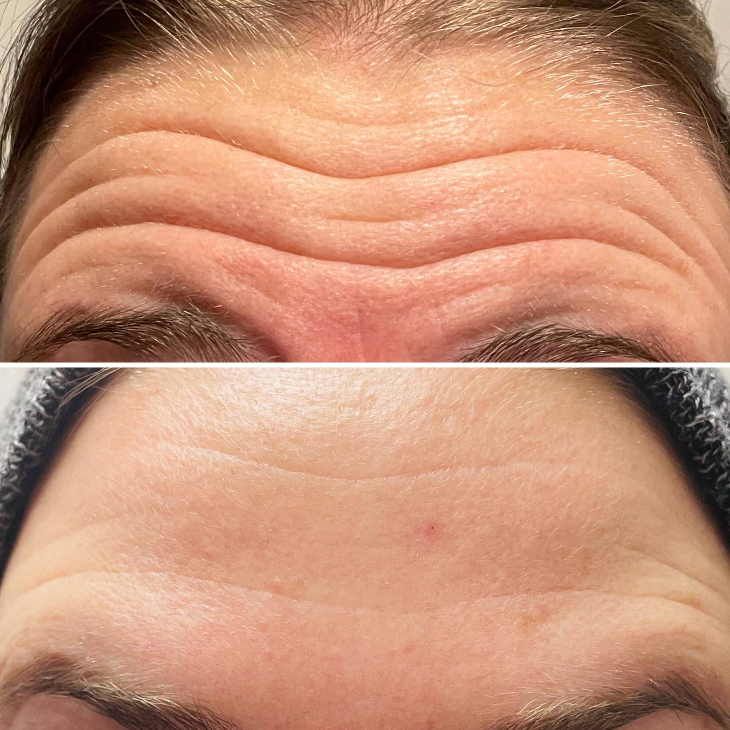 beauty cosmetic injectors dysport botox injections ottawa ontario