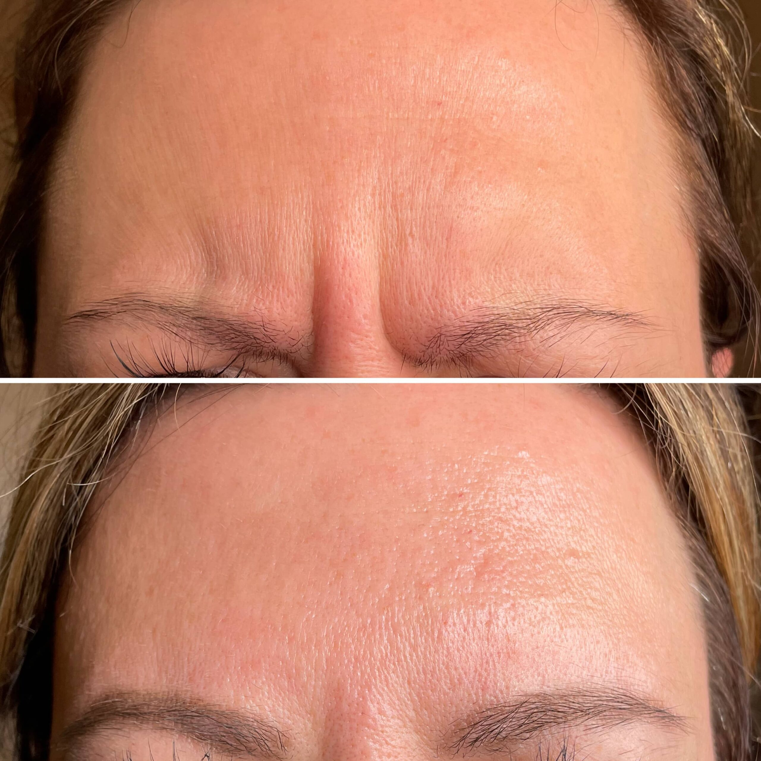 beauty cosmetic injectors frownlines botox dysport injections