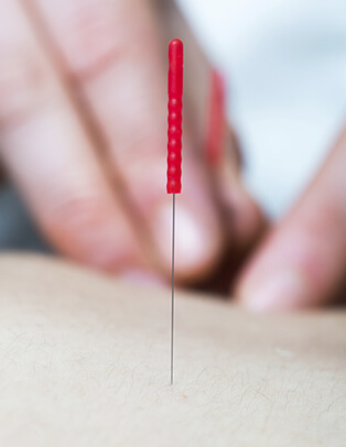 Acupuncture and Trigger Point Therapy
