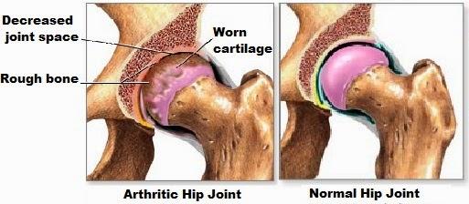 Hip-osteoarthritis