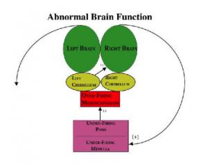 abnormalbrainfunction-300x237