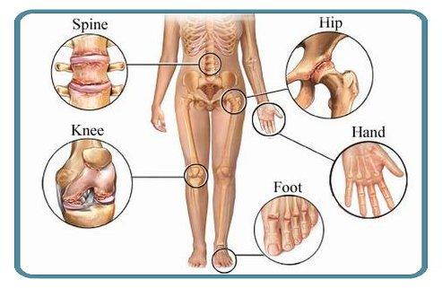 arthritis_osteoarthritis