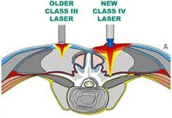 lasercartoon