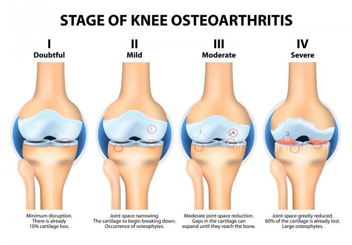 stage-of-knee-Osteoarthritis