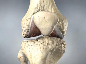 Arthritis-Osteoarthritis treatment