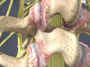 Facet-joint-pain