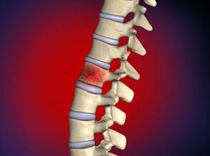 vertebral-compression-fractures