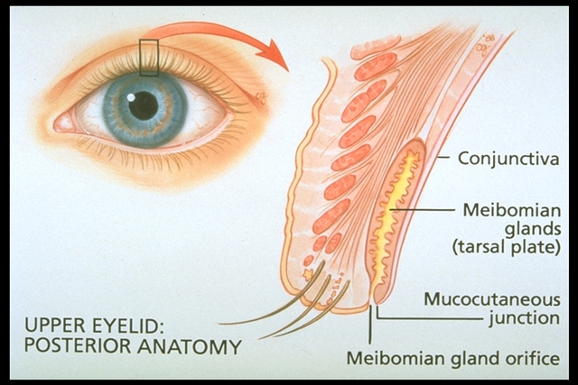 "The oily layer is secreted by the Meibomian glands which can become inflamed and cause the secretions to ""thicken"""