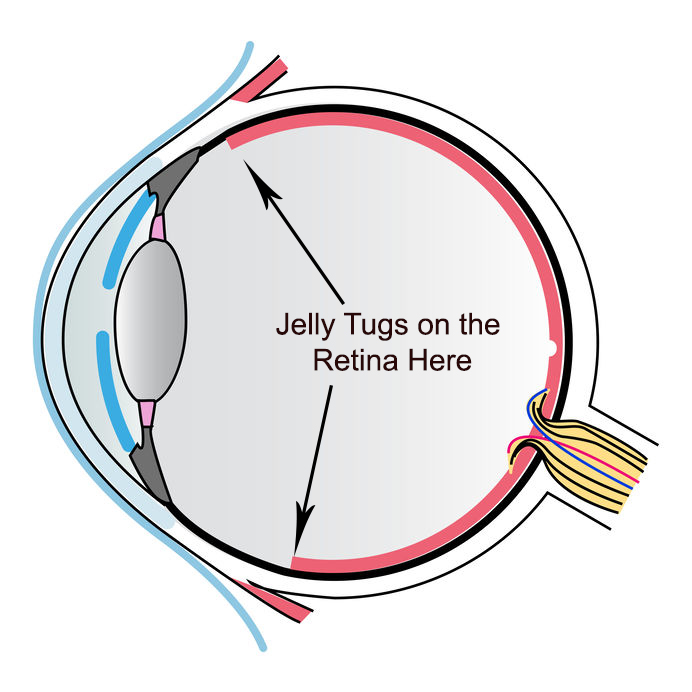 flickering and flashing lights after cataract surgery are caused by the vitreous jelly tugging on the retina.
