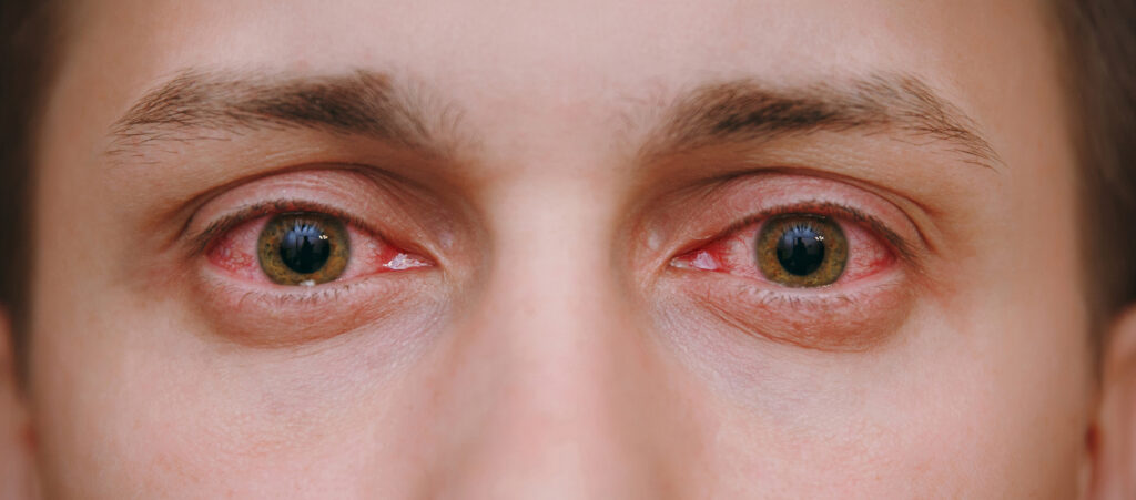 Red, itchy dry eyes