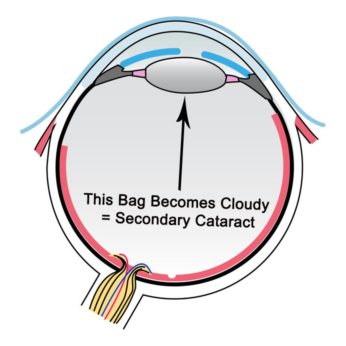Secondary cataract after cataract surgery is very common and happens 50% of the time