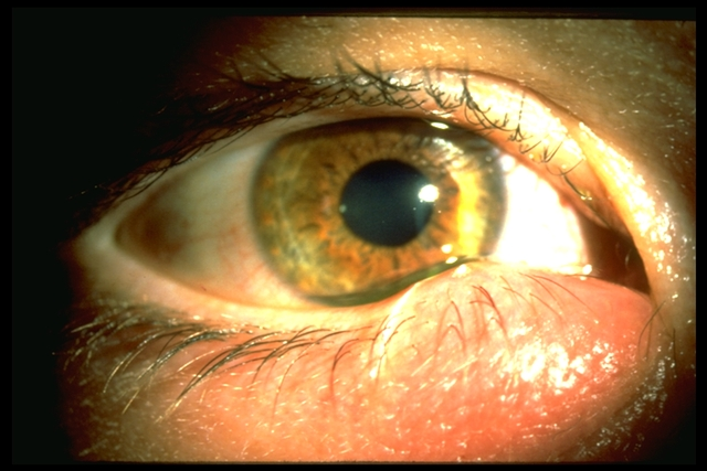 stye is caused from thickened secretions.  Causes a plug at the pore that then creates an inflammatory reaction
