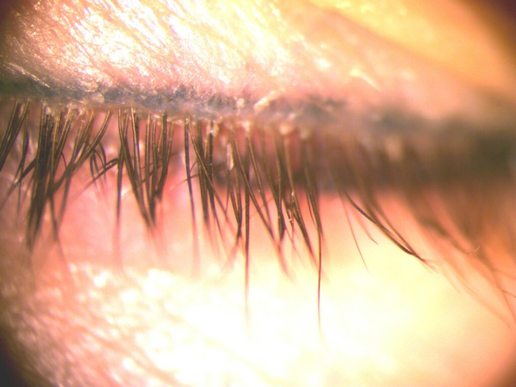 blepharitis with flakes and demodex