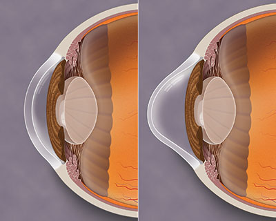 Keratoconus is a progressive thinning of the cornea that causes visual distortion.