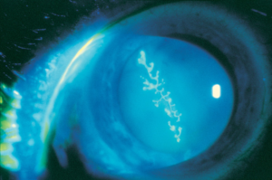 Ocular Herpes