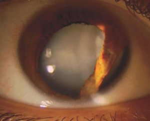 Traumatic Cataract