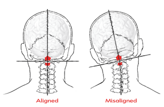tilted_head