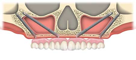 image of zygomatic implants