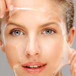 Chemical Peel @Accent-Beauty