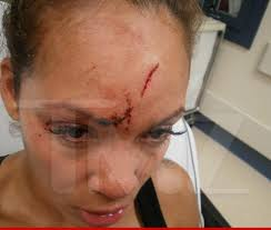 The HeadButt Heard Around The World.  This photo of Evelyn's forehead cut up from Ochocinco allegedly headbutting her after she confronted him bout a used condom.