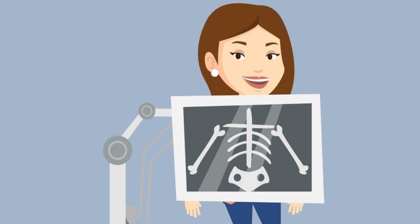 Bone health xray
