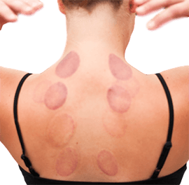 Wet cupping hijama massage Banu Acan DPT certified best clean hygenic practices corerevcenter lakewood ranch florida bradenton 34240